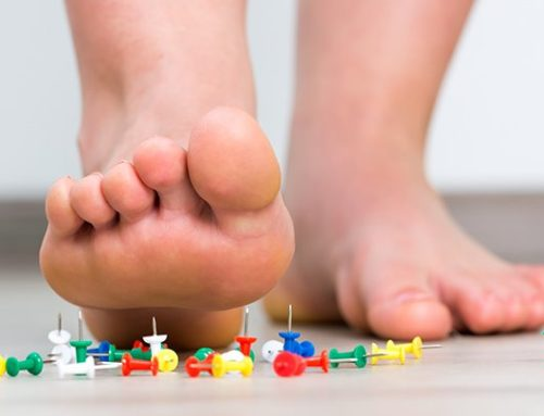 Neuropathy: That Strange Burning & Tingling In Your Feet