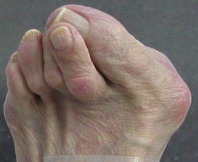 Hamer toe surgery