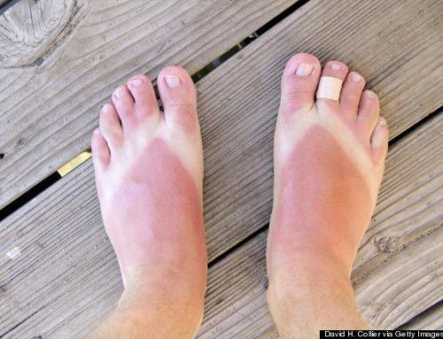 Sunburn on Feet……Ouch!