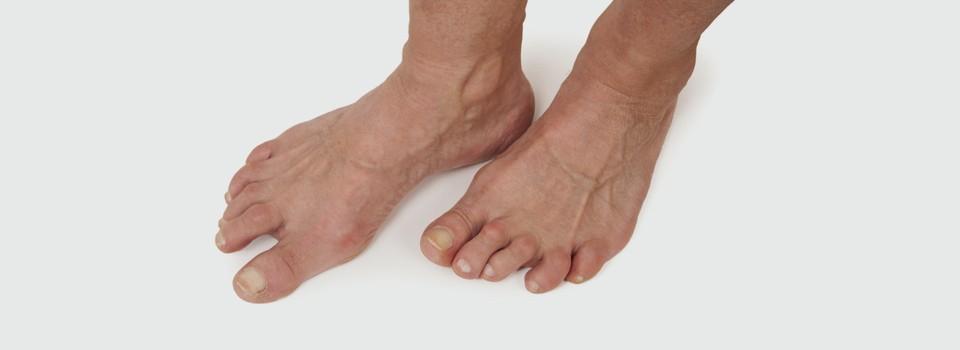 Rheumatoid Feet